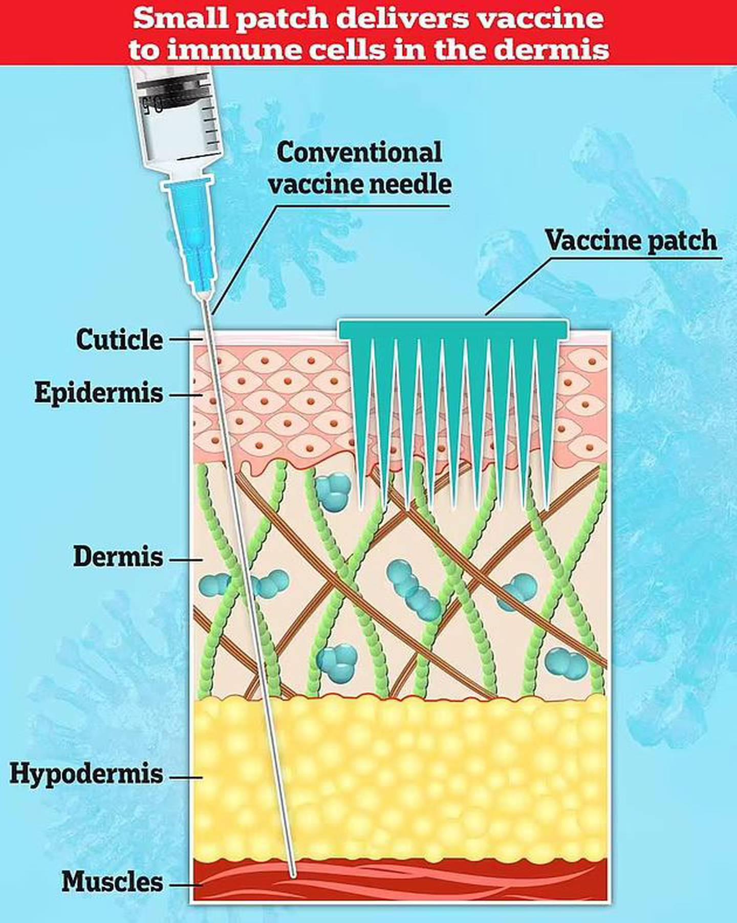 Más allá de la hipodermis se encuentra la grasa y el músculo que suele atravesar una aguja de vacuna tradicional.